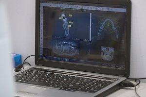 Monitor of laptop with stomatology photo of teeth