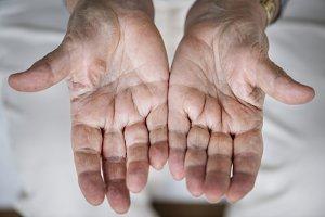 Closeup of elderly hand palms