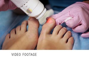 Podiatrist treating onychomycosis