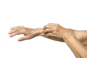 Old hands itching in arm on white