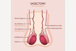 Man Vasectomy