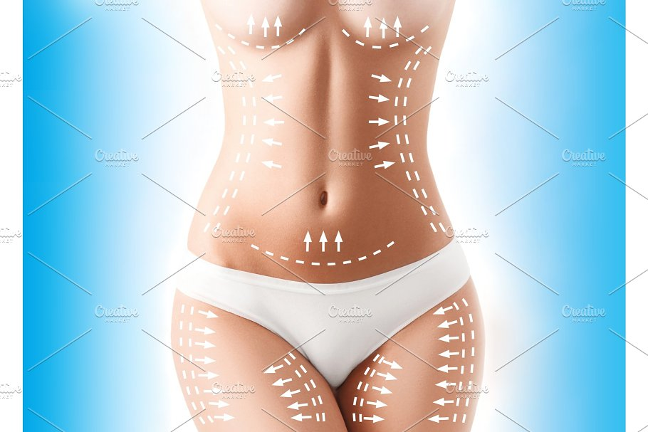 f227d870f2 The cellulite removal plan. White markings on young woman body ...
