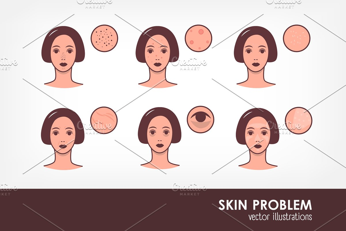 female faces with skin conditions