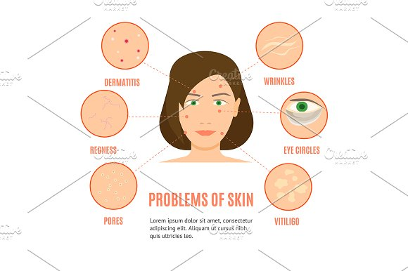Girl Skincare Different Problems