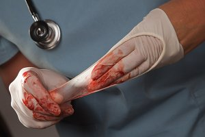 Doctor with Bloody Surgical Gloves
