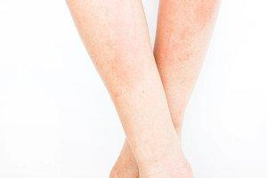 Rash skin inflammation