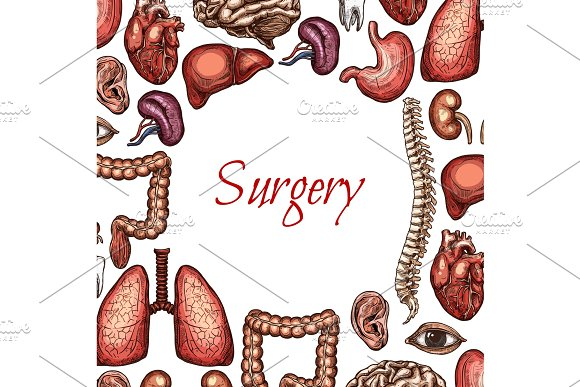 Surgery Poster With Human Organ Body Parts Sketch