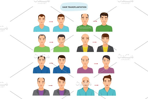Hair Transplant Vector Hairy Transplantation After Hairloss And Baldness For Bald Man Illustration Set Of Hairless Male Character And Haired Person With Haircat Isolated On White Background