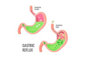 Gastric reflux medical promo poster with human organ