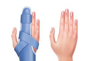 Hand with brace