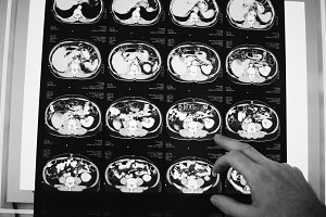 Brain CT scan x-ray film