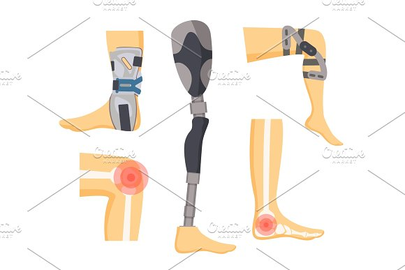 Pain In Joints And Orthopedic Retainers On Legs