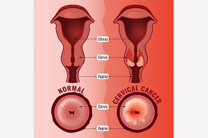 Cervical Cancer Image