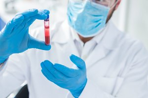 Blood sample in hands of professional scientist
