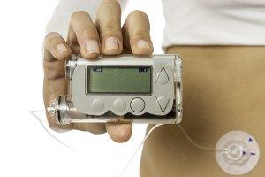 hand holding an insulin pump.jpg