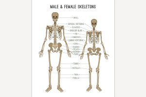 Skeleton differences image