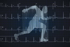 Electrocardiogram in running shape