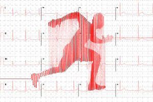 Electrocardiogram in runner shape
