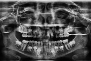 Radiography teeth.