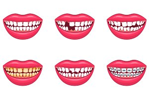 3d Dental Problems Set. Vector