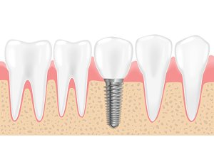 Healthy teeth and dental implant.