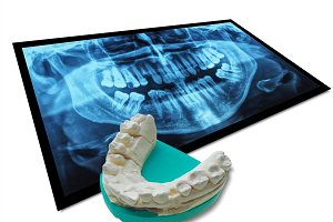 Xray with teeth cast