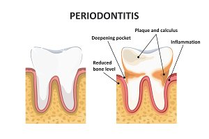 Periodontitis, dental disease