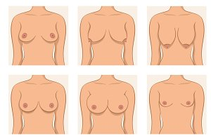 Types of women's breasts