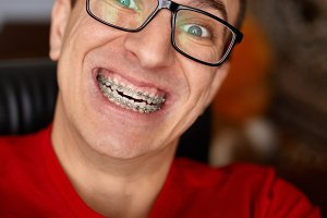 Curved teeth of guy with braces in g