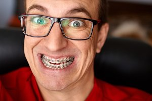 Crazy face of guy with braces on his