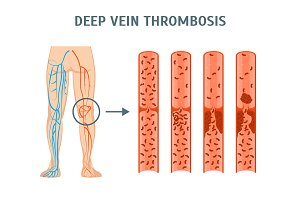 Deep Vein Thrombosis Infographics