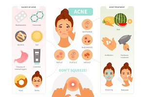 Acne infographic vector