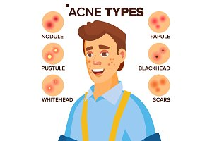 Acne Types Vector. Man With Acne