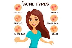 Acne Types Vector. Girl With Acne