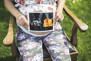 Pregnant women hold picture of womb