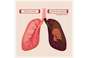 Smoker lungs. Smoke human damage