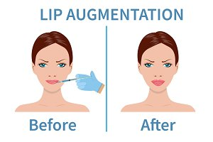 Lip augmentation with hyaluronic