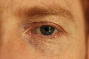 Blue eye man macro