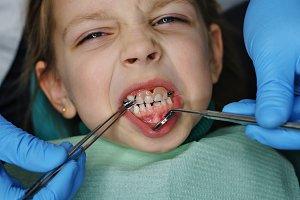 Little girl at dental clinic