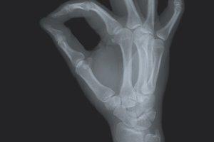 Radiography. Human hand