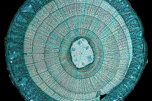 Light micrograph of plant cells
