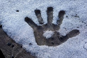frozen hand