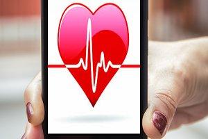 Mobile concept electrocardiogram: wo
