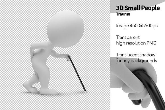 3D Small People - Trauma