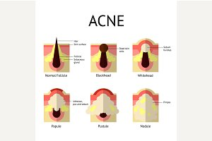 Types of acne pimples. Healthy skin