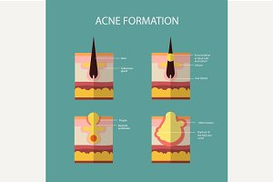 Formation of skin acne or pimple.